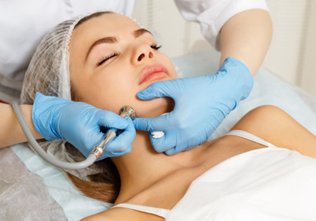Mikrodermabrasion Behandlung