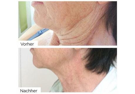 Hals vor und nach der Plasma Behandlung