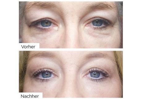 Augen vor und nach der Plasma Behandlung